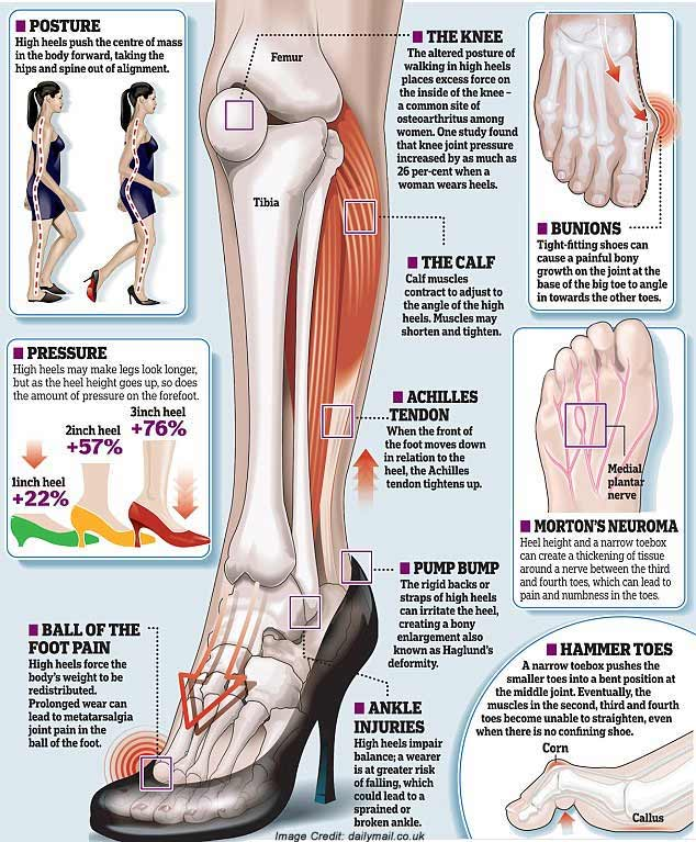 4288c3a4daf Ladies who wear high heeled shoes are stupid, here is Why ? – GIJO ...